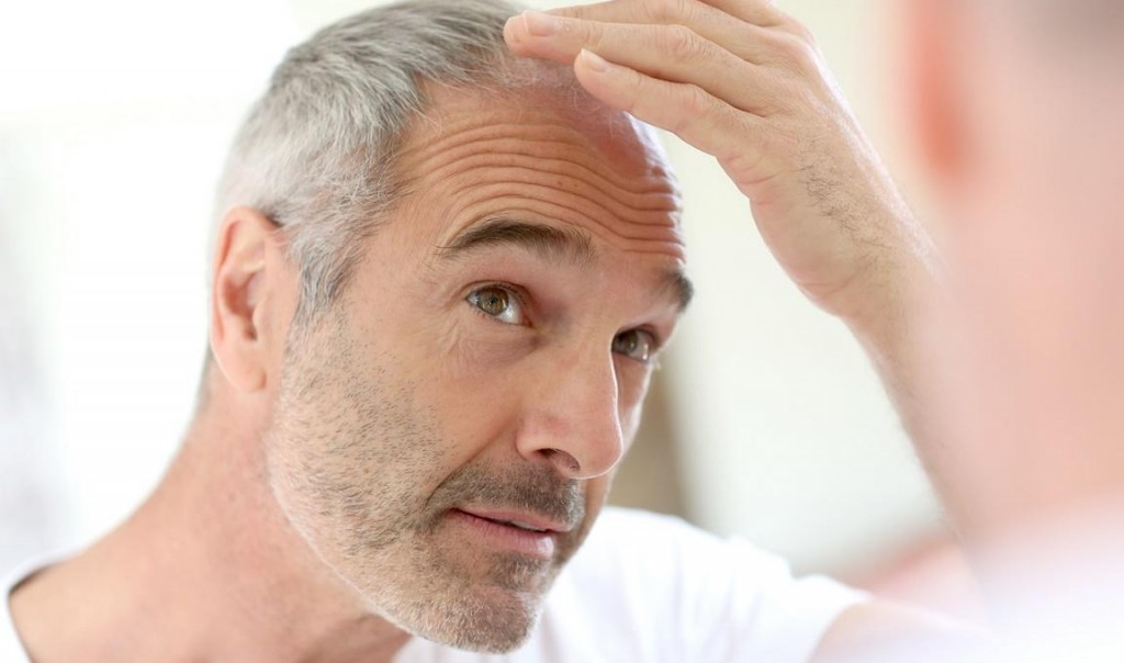 Presađivanje kose, odnos kvaliteta i kvantiteta