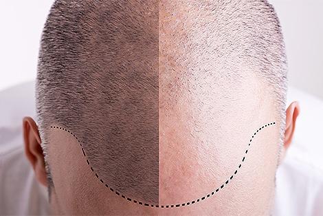 Transplantacija kose: najčešća pitanja