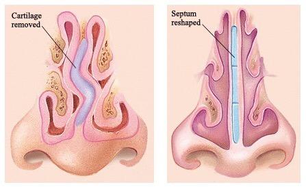 Grafički prikaz krive nosne pregrade koja iziskuje operaciju devijacije nosa