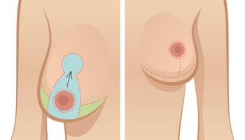 Korekcija asimetrije grudi