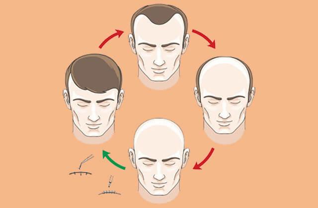Gubitak kose i gubitak samopouzdanja