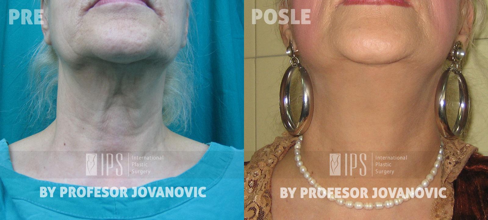 Face lifting - pre i posle