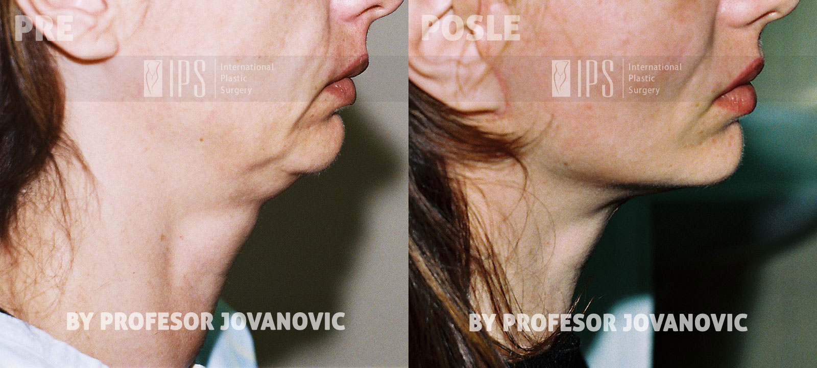 Face lifting - pre i posle, desni profil