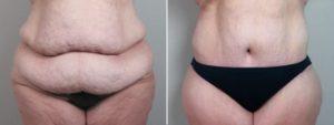 Procedura bariatric total body lift - pre i posle