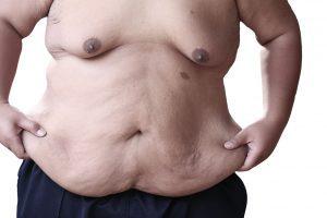 Masno tkivo na stomaku