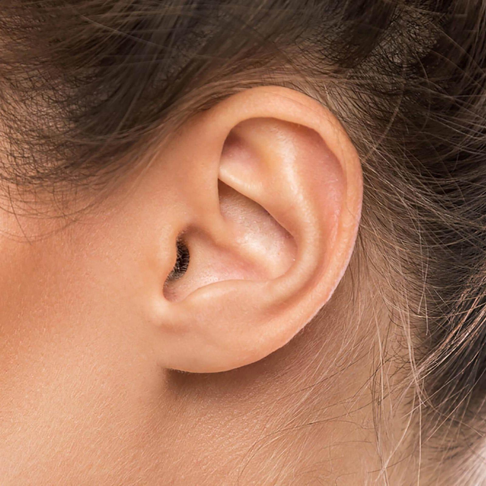 Operacija klempavih ušiju (korekcija ušiju)