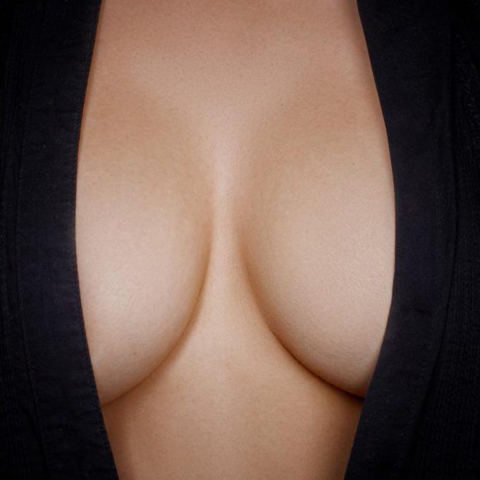Povećanje grudi implantima (silikonima)