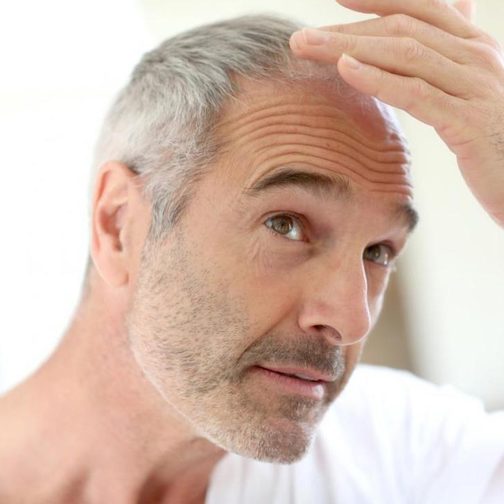 PRP tretman – lečenje ćelavosti i opadanje kose matičnim ćelijama