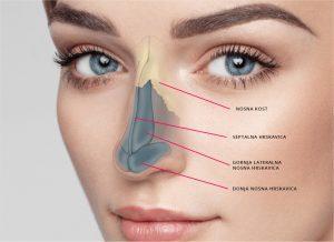 Sekundarna rinoplastika - procedura