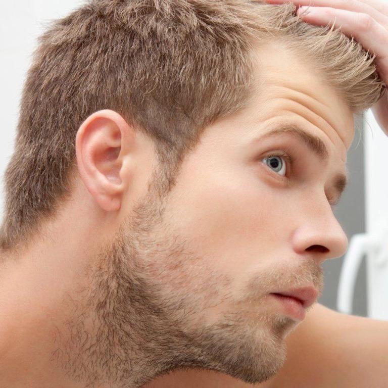 Transplantacija kose