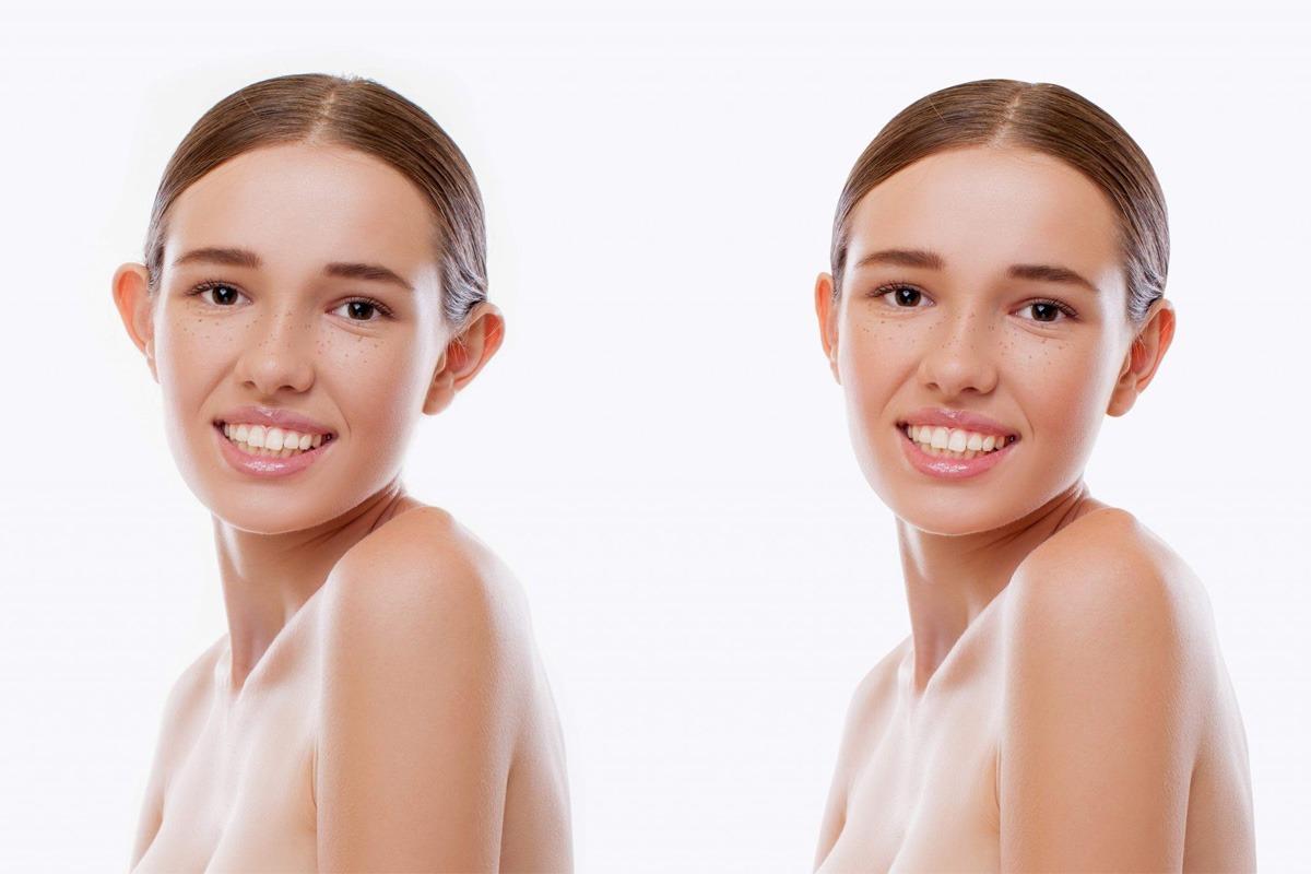 Klempave uši u pubertetu