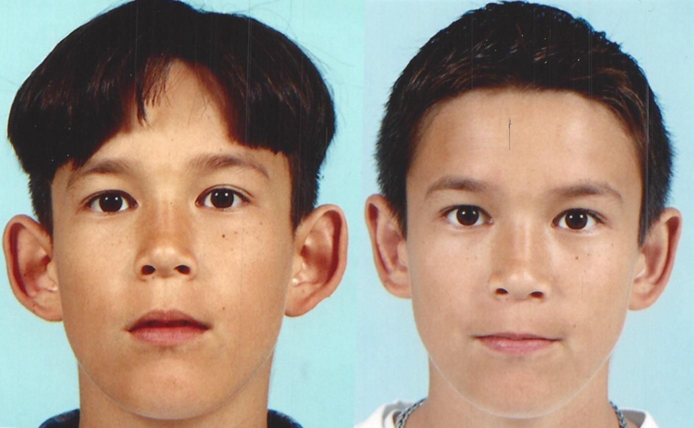 Korekcija prominentnih ušiju kod dece - pre i posle