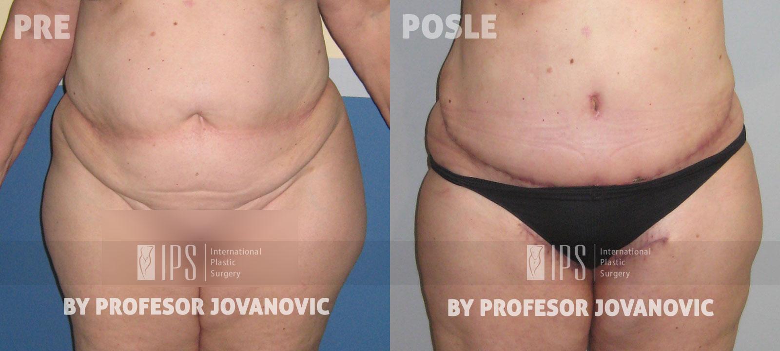 Liposukcija - pre i posle, napred