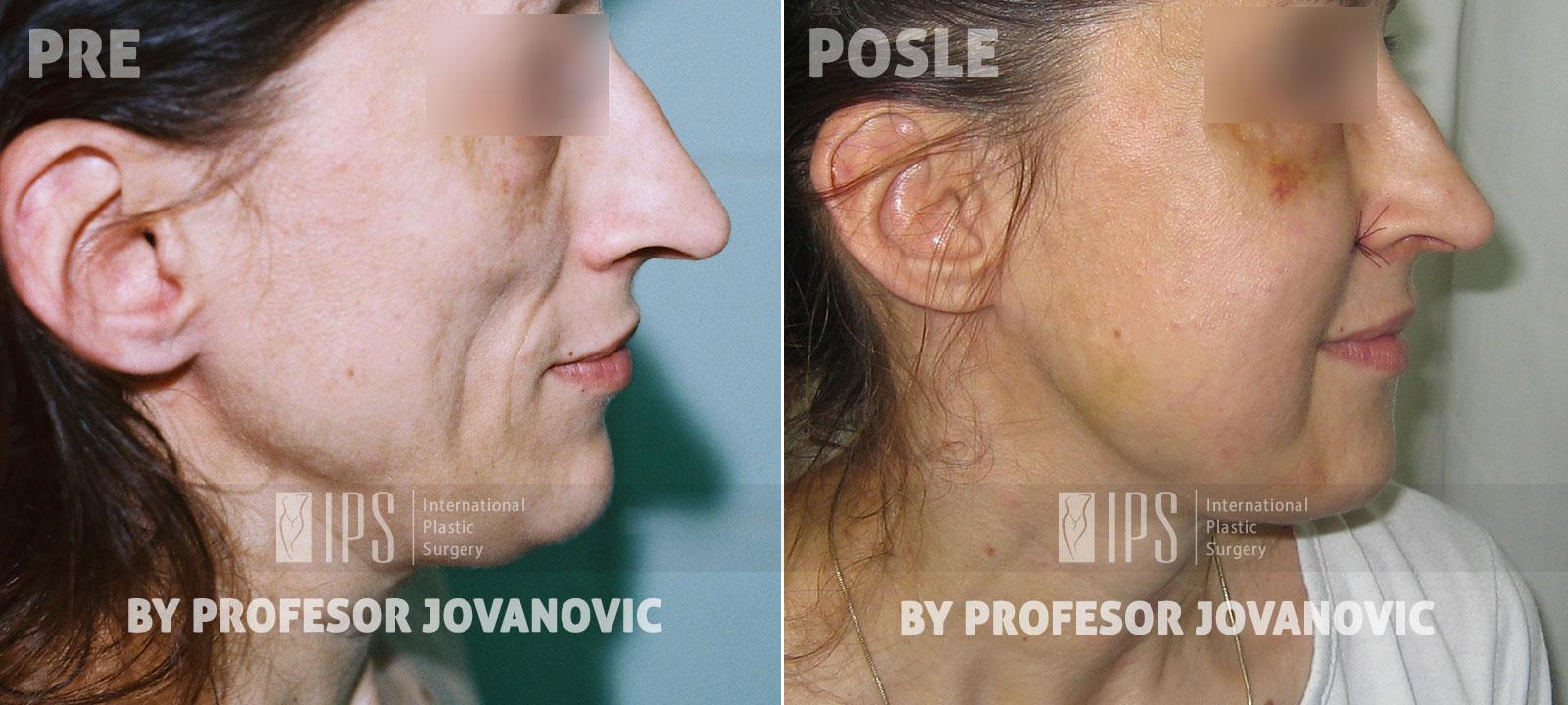 Transfer masti - pre i posle, desni profil