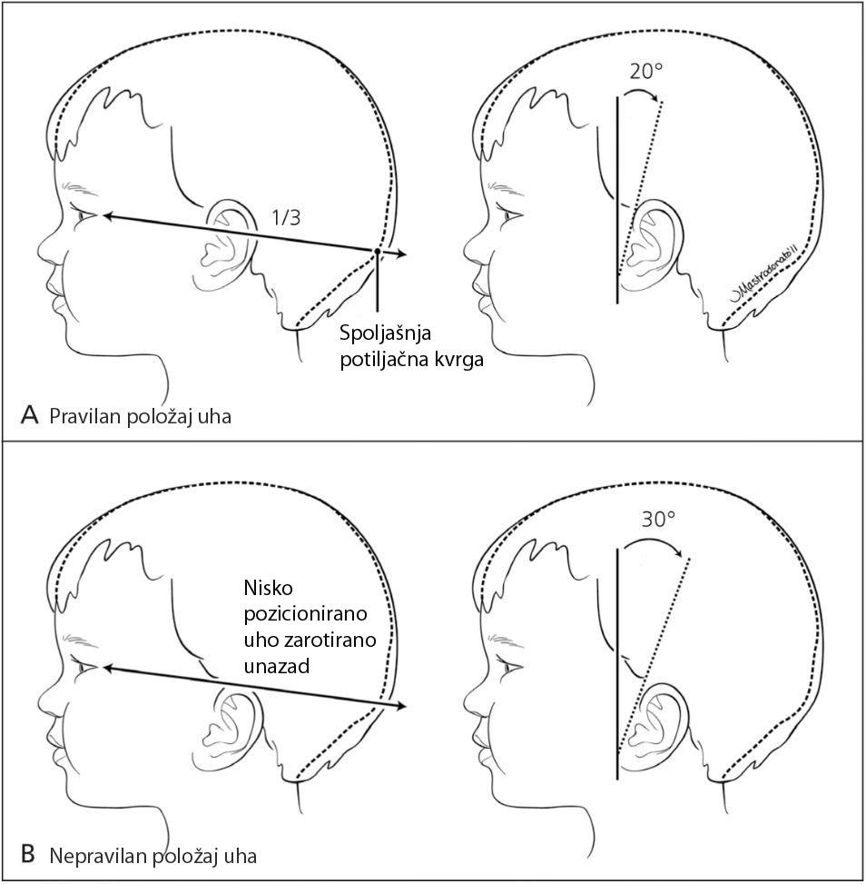 Određivanje položaja uha kod deteta
