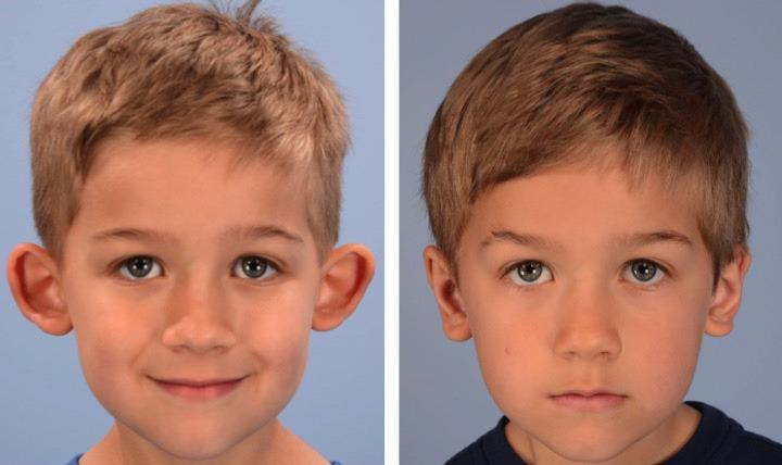 Operacija ušiju kod dece - pre i posle
