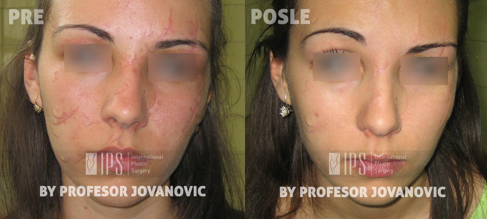 Korekcija ožiljaka - pre i posle