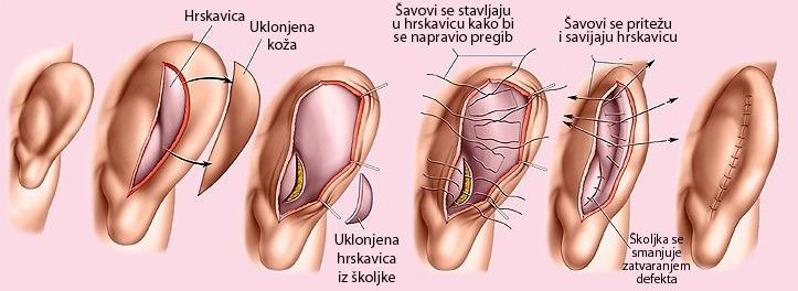 Rez kod hirurškog zahvata korekcije ušiju