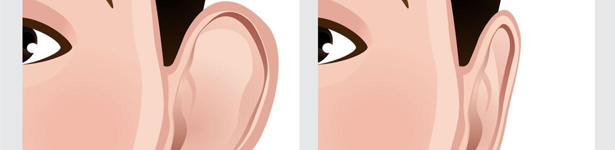 Estetska korekcija ušiju