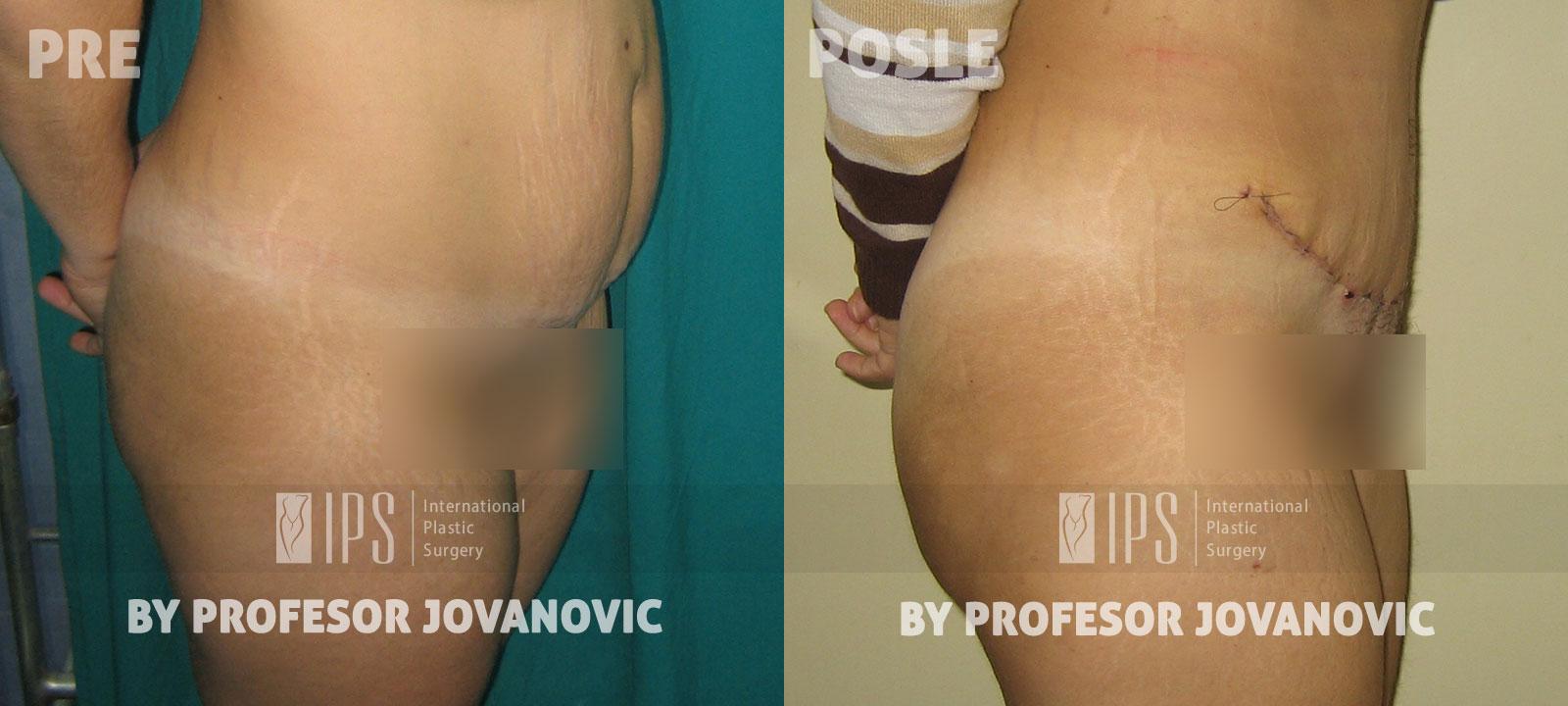 Zatezanje stomaka - pre i posle, desni bok