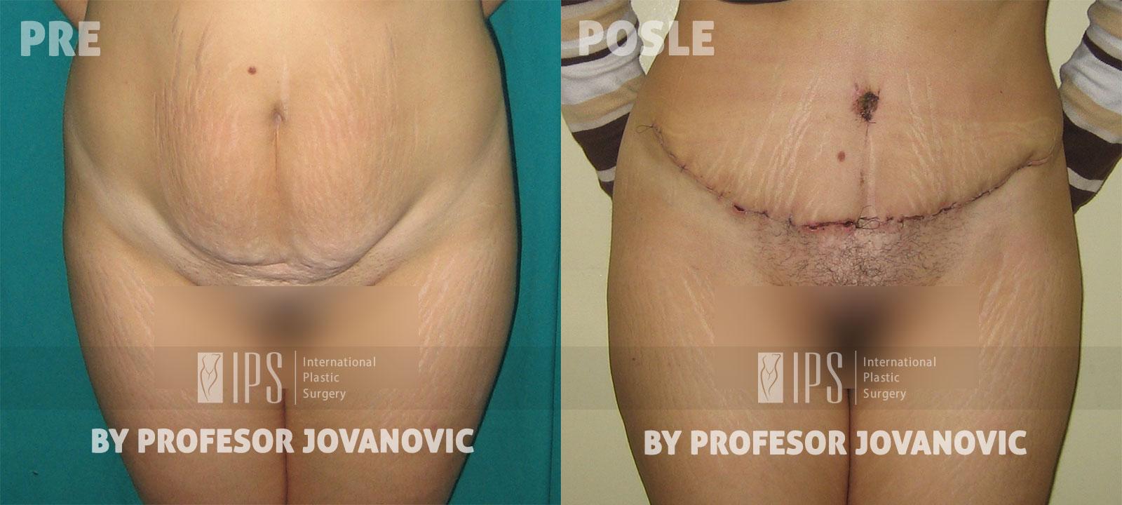 Zatezanje stomaka - pre i posle, napred