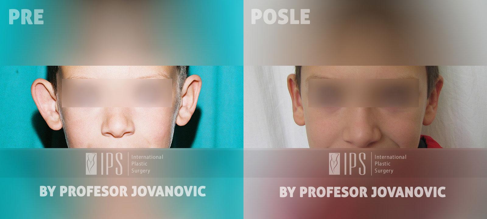 Operacija ušiju - pre i posle