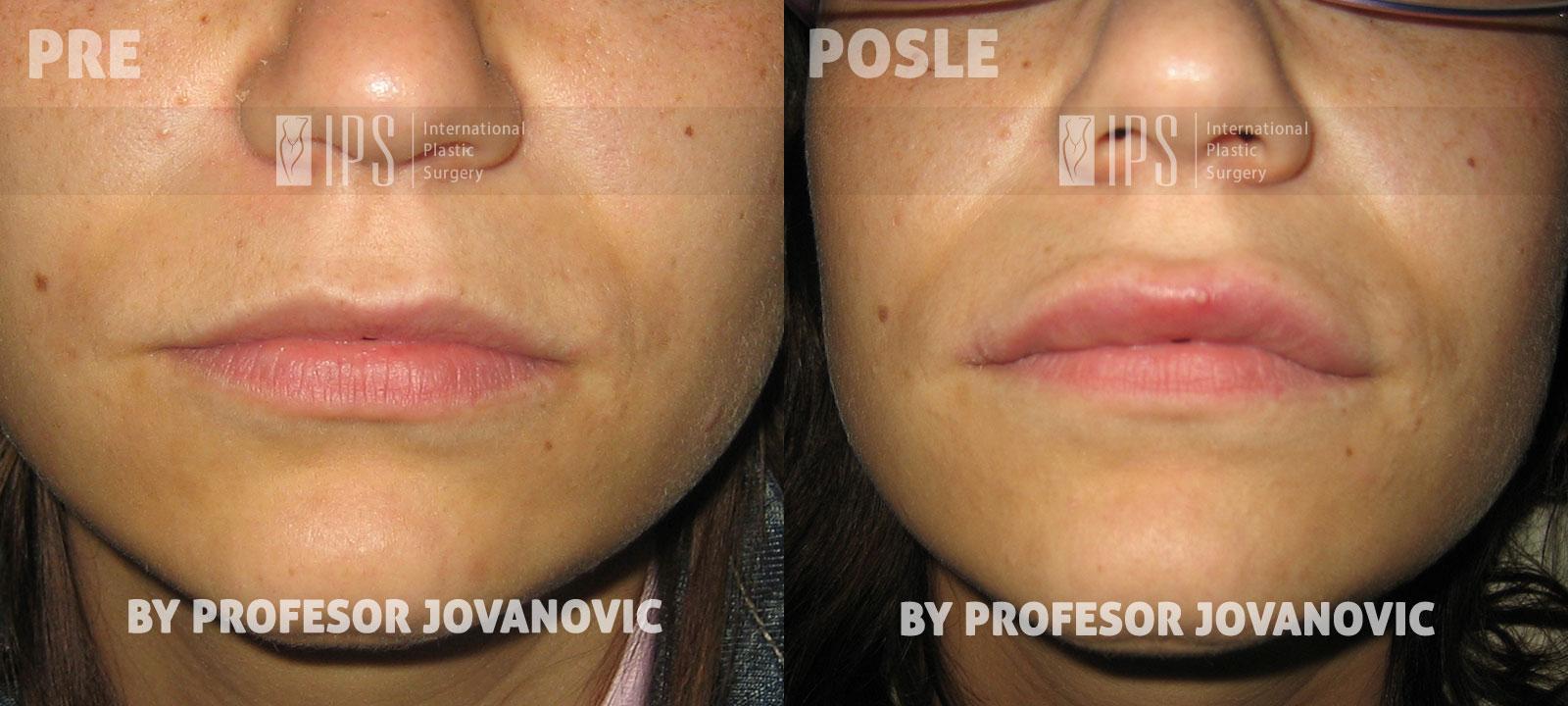 Povećanje usana - pre i posle