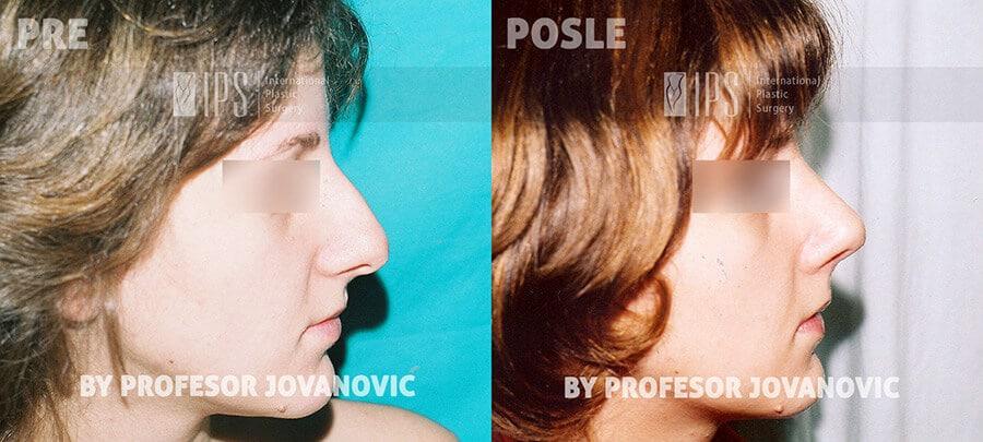 Operacija nosa - pre i posle, desni profil