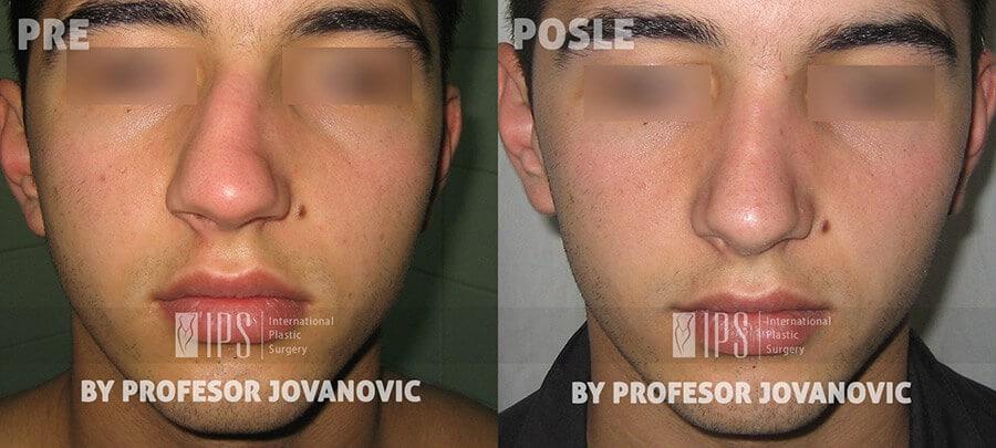 Operacija nosa - pre i posle, napred