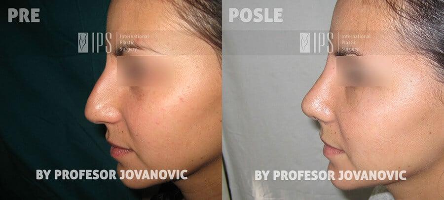 Operacija nosa - pre i posle, levi profil