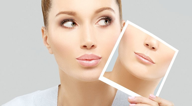 Povecanje usana - pre i posle