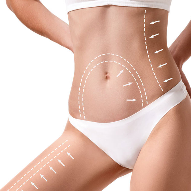 Ultrazvučna liposukcija