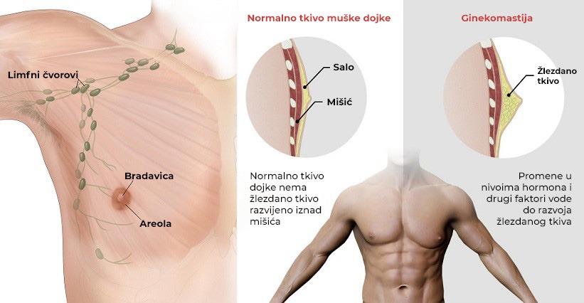 Lečenje ginekomastije