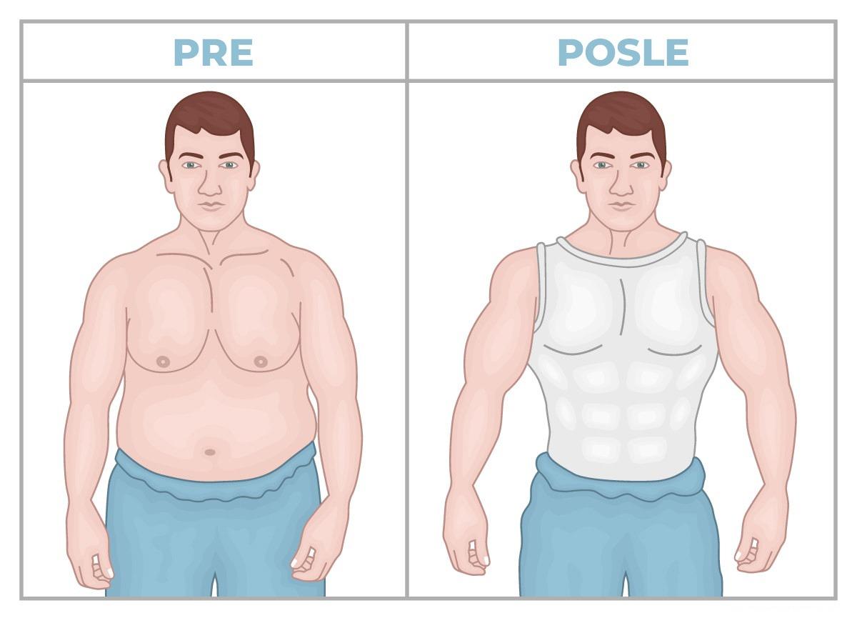 Povećajte samopouzdanje estetskom hirurgijom