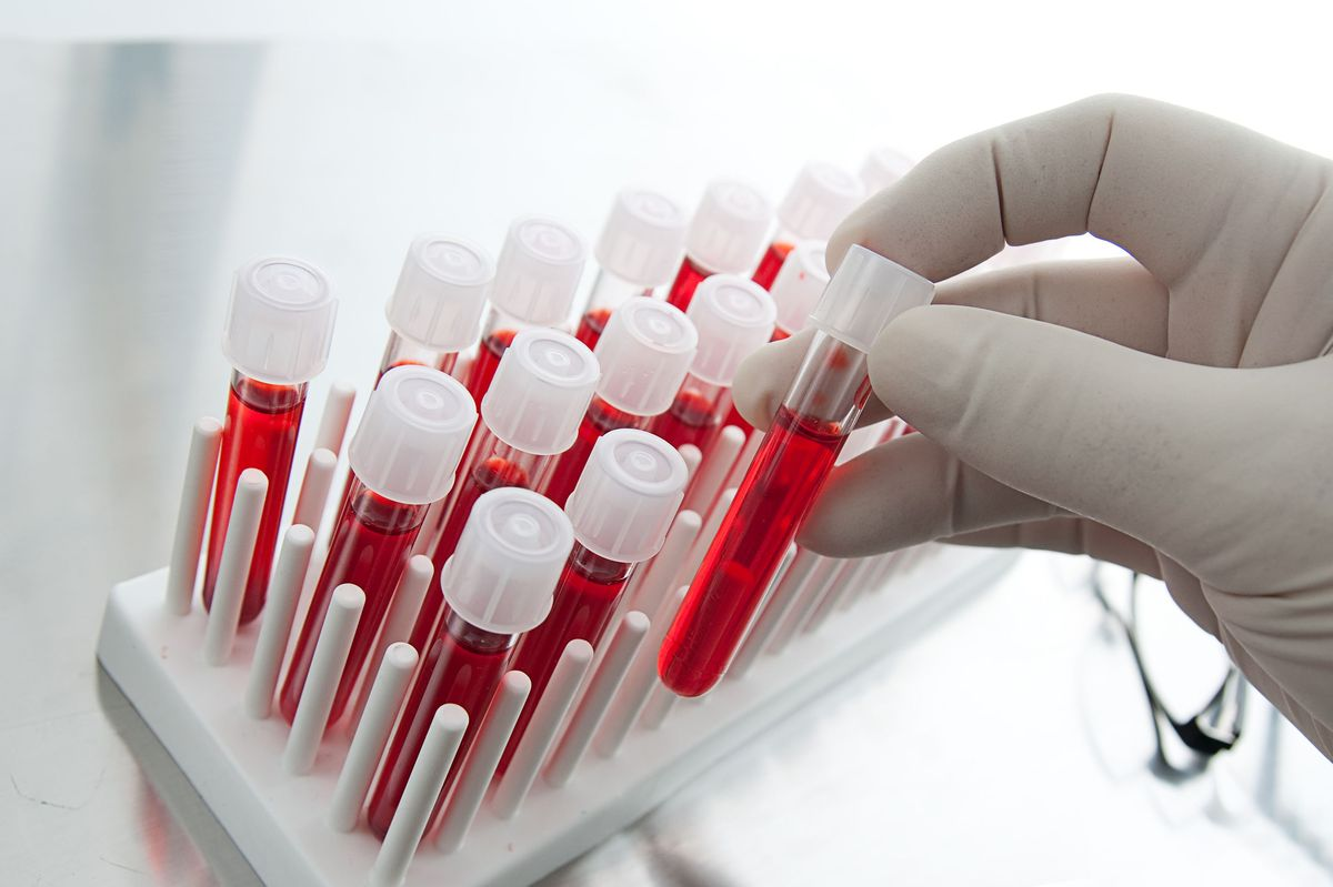 Preoperativne analize za operaciju ginekomastije