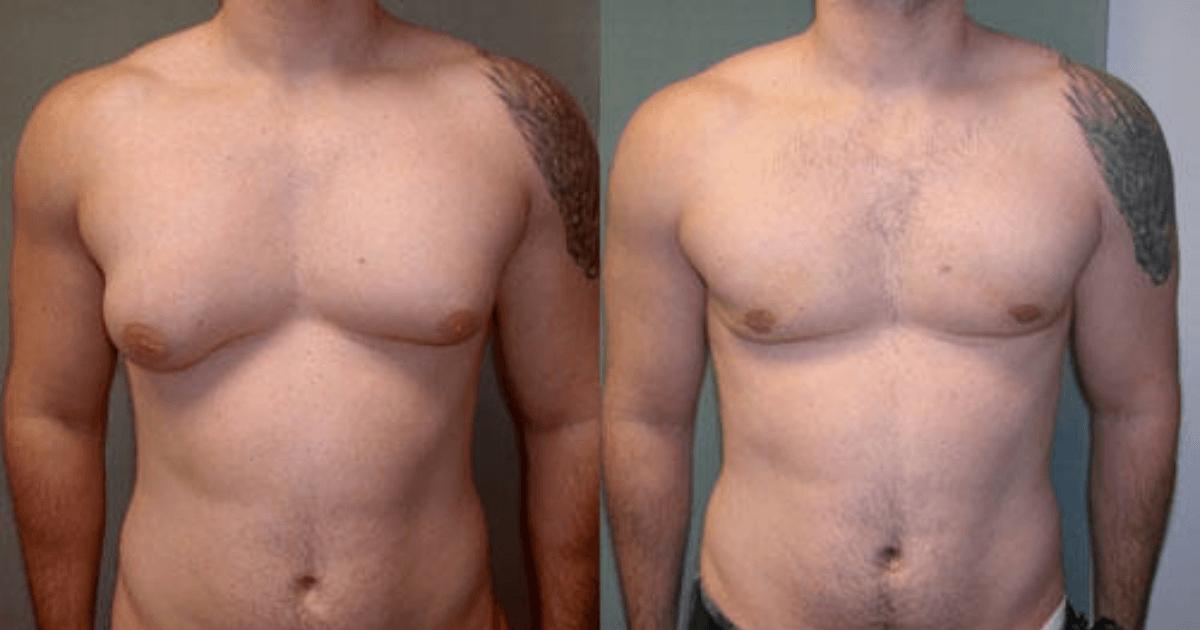 Rezultat pre i posle operacije smanjenja grudi kod muškarca