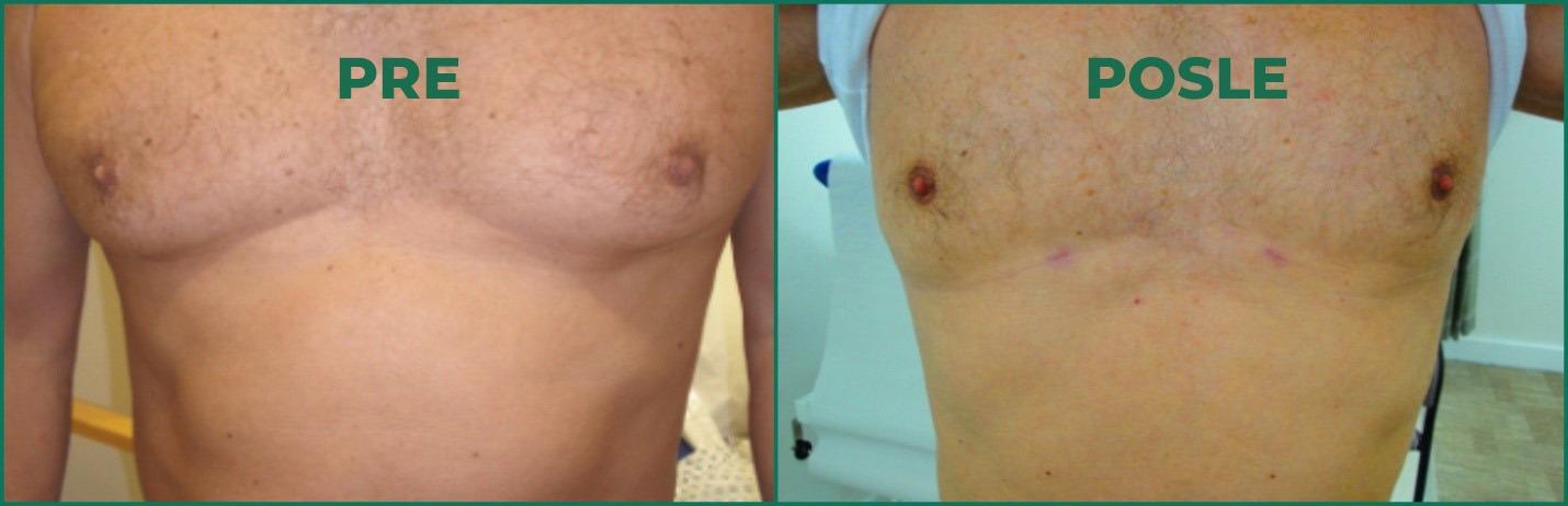 Slika pre i posle ginekomastije