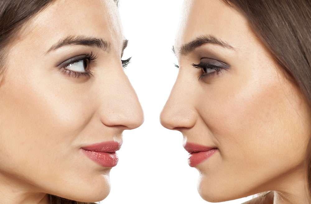 Smanjivanje nosa rinoplastikom