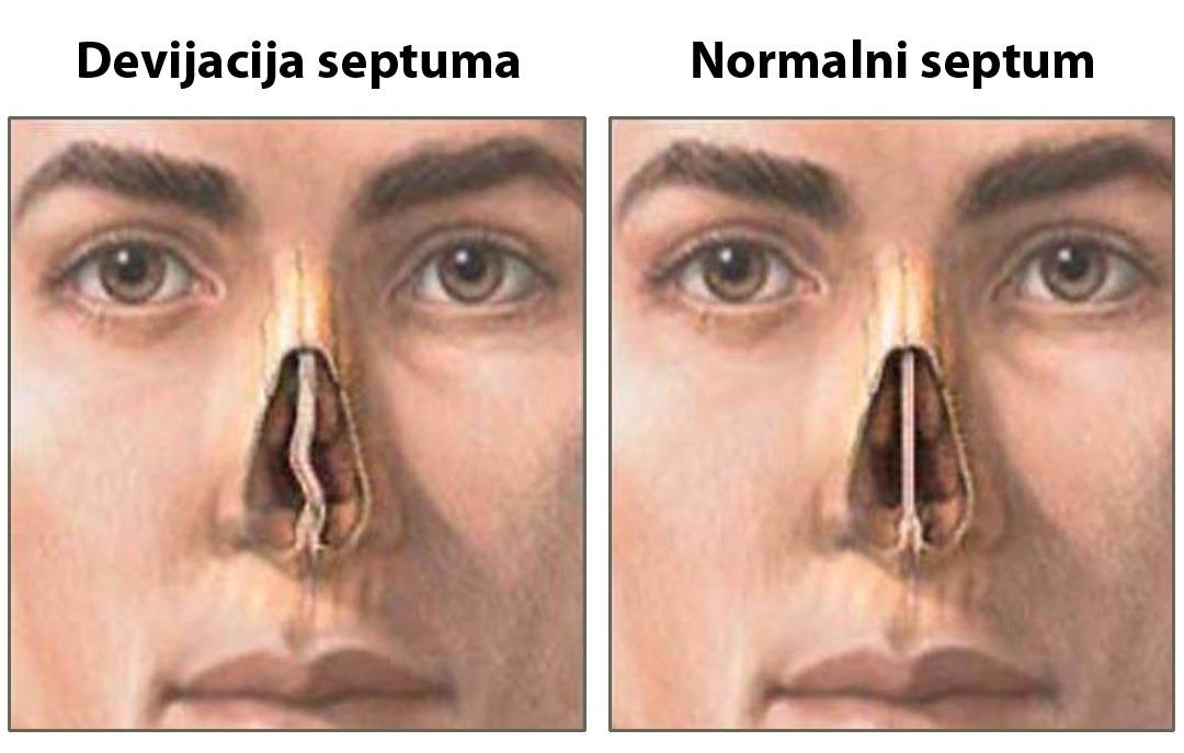 Ispravljanje devijacije nosne pregrade (pre i posle)