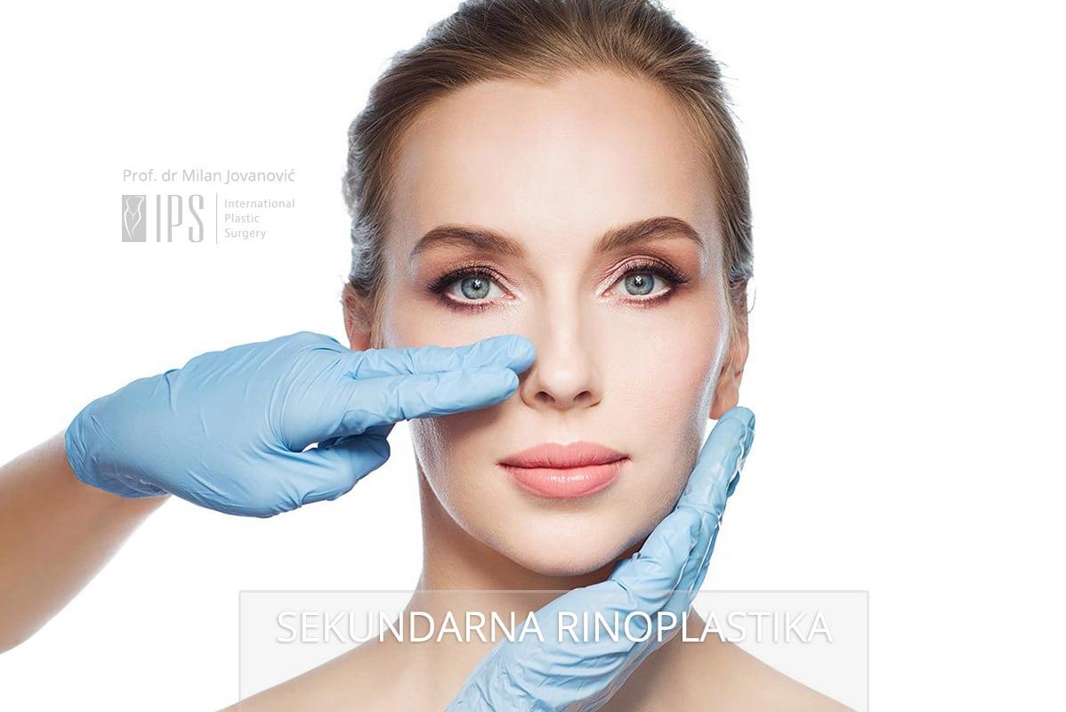 Sekundarnom rinoplastikom se koriguju nezadovoljavajući rezultati primarne operacije nosa