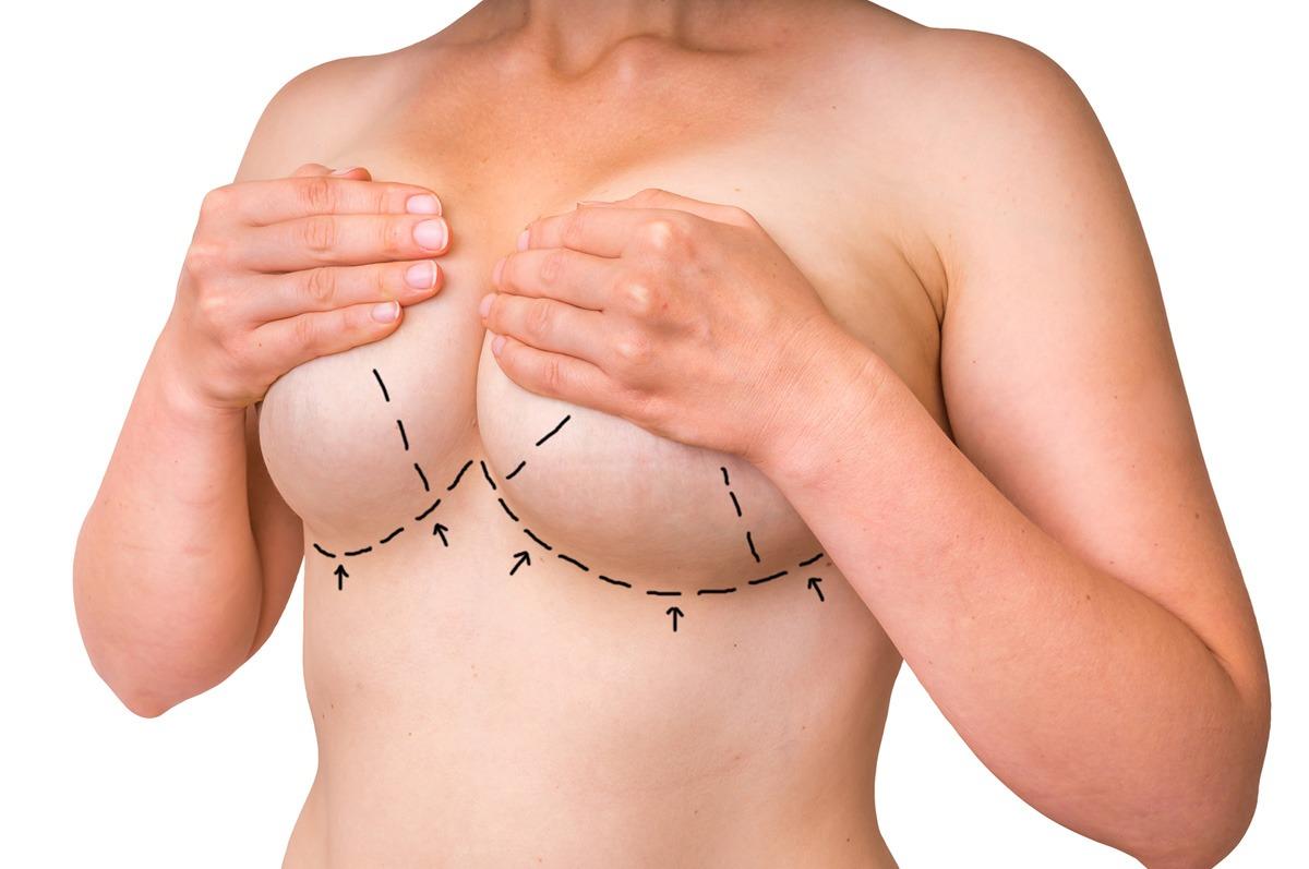 Smanjivanje i podizanje grudi