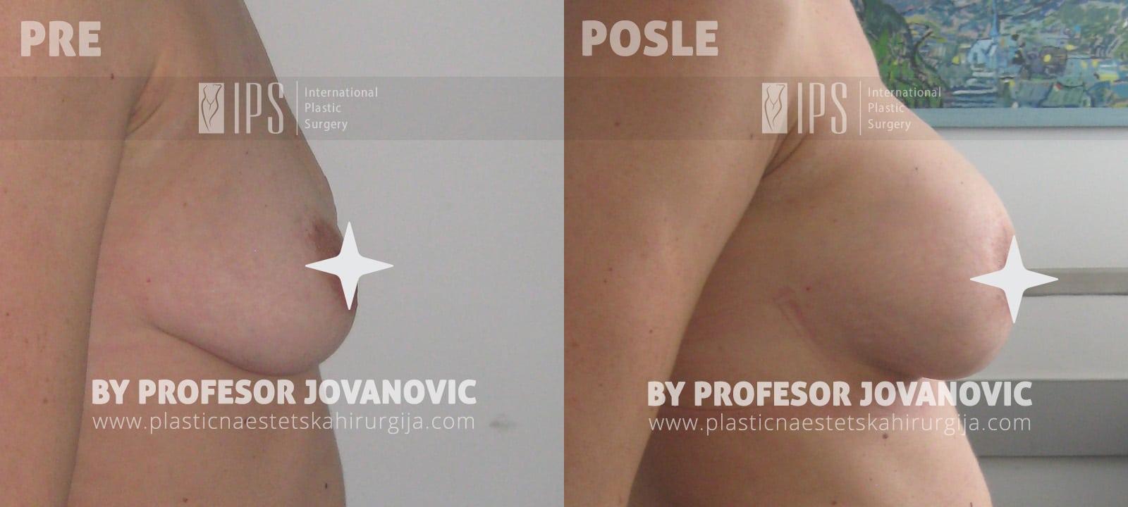 Asimetrija i augmentacija dojki (bez ožiljaka) - pre i posle, desni bok