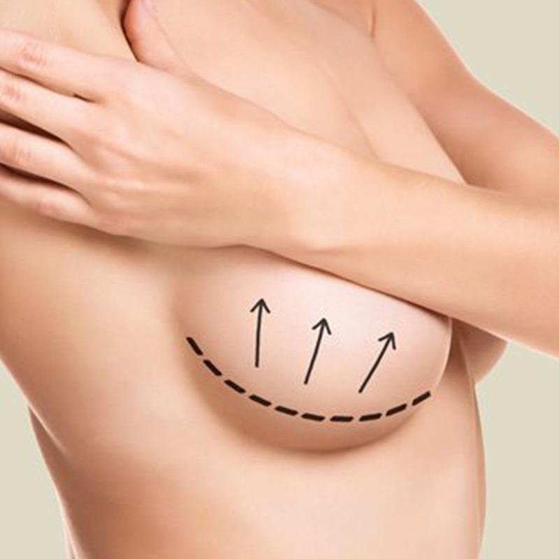 Podizanje i uvećanje dojki implantima