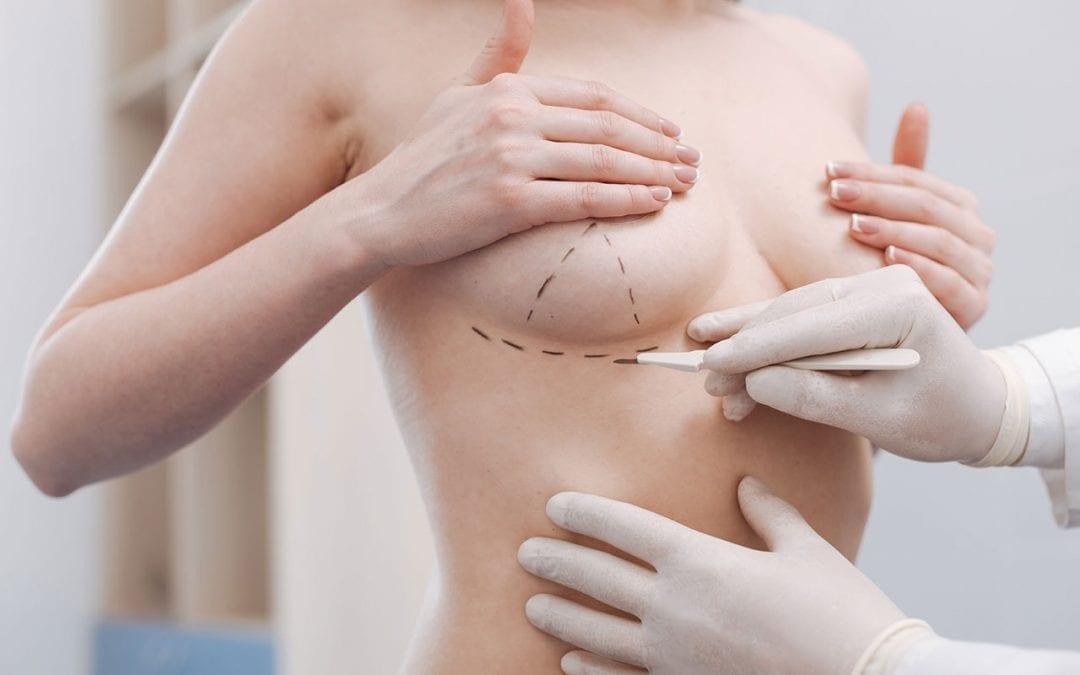 Preoperativna priprema za podizanje grudi bez implantata