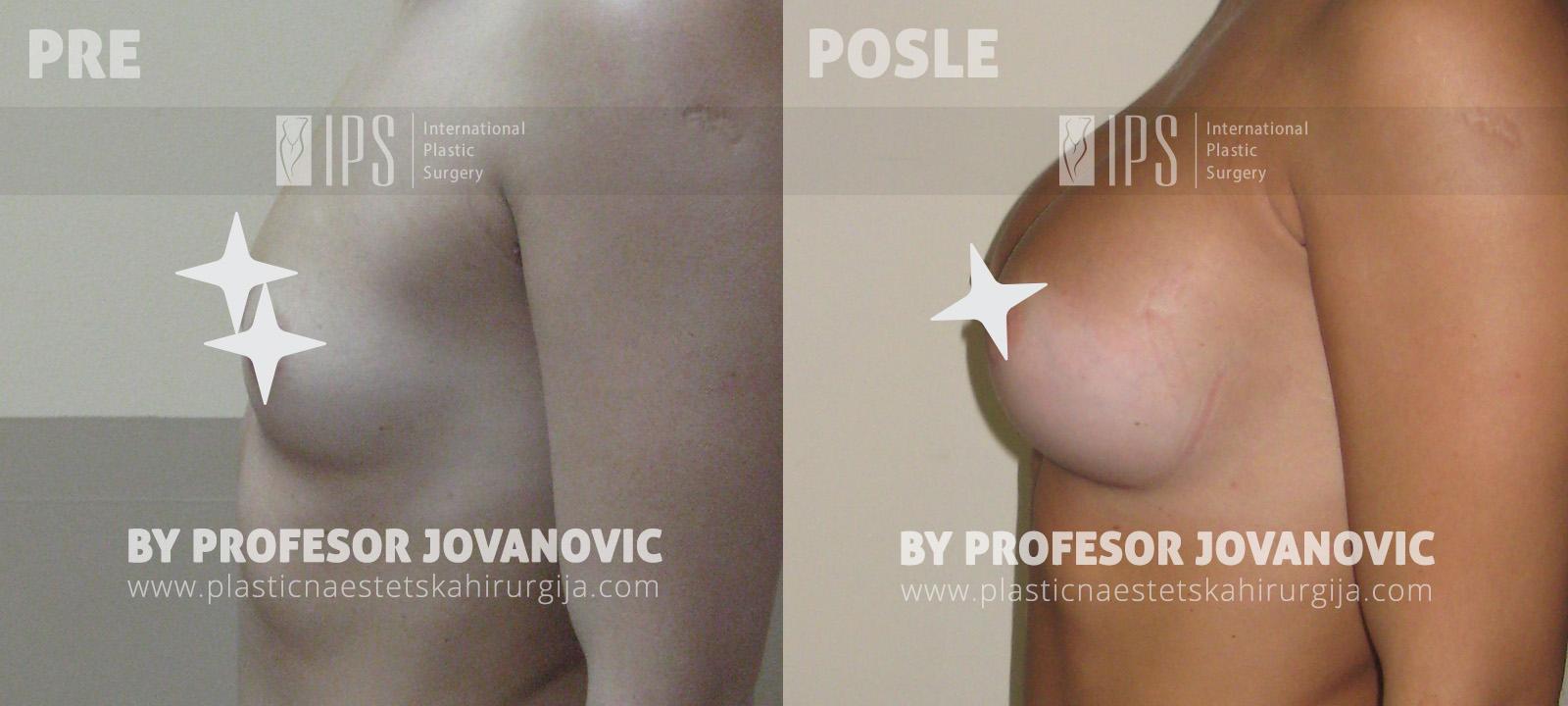 Povećanje grudi - pre i posle, levi bok