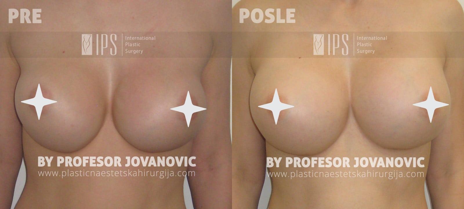 Menjanje implanta u dojkama, 400 cc za 700 cc - pre i posle, napred