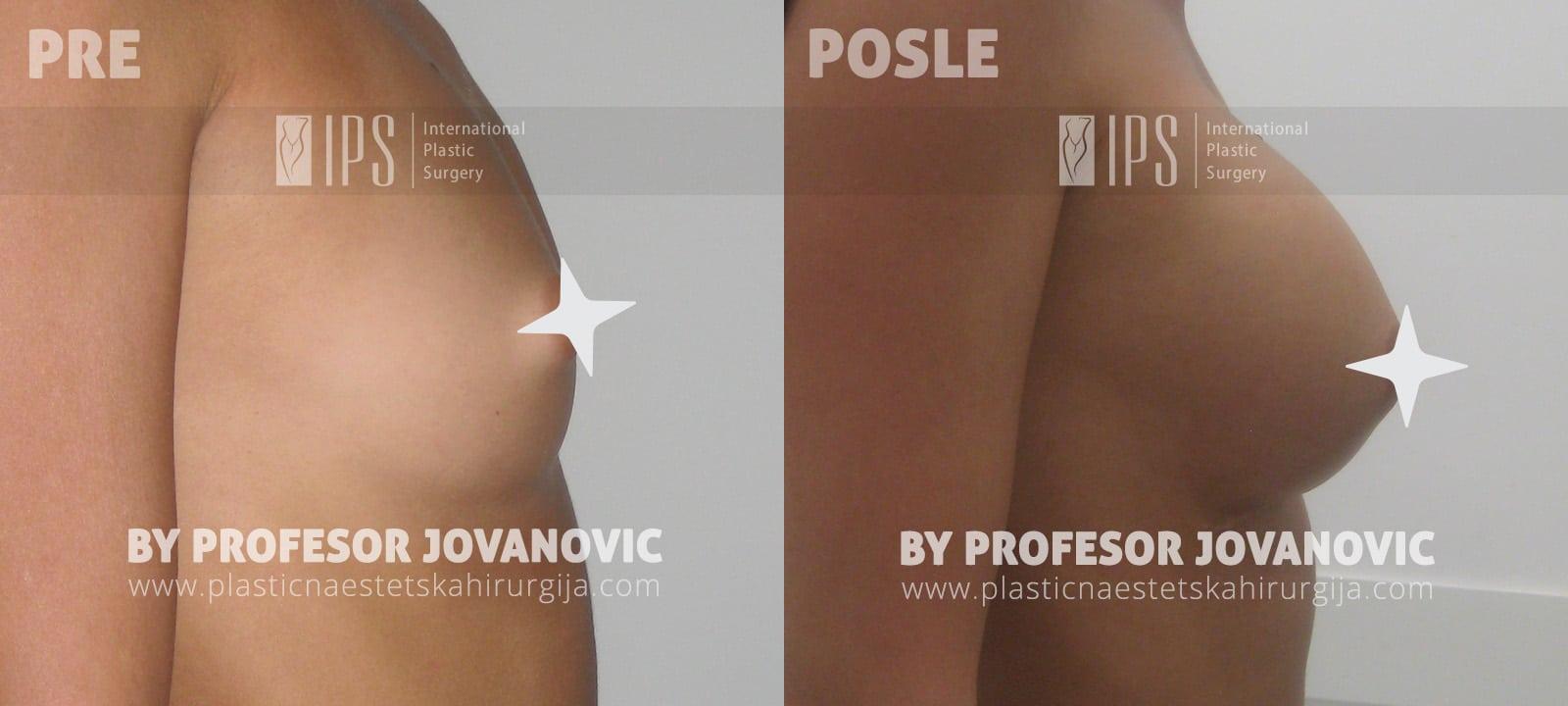 Povećanje grudi - pre i posle, desni bok