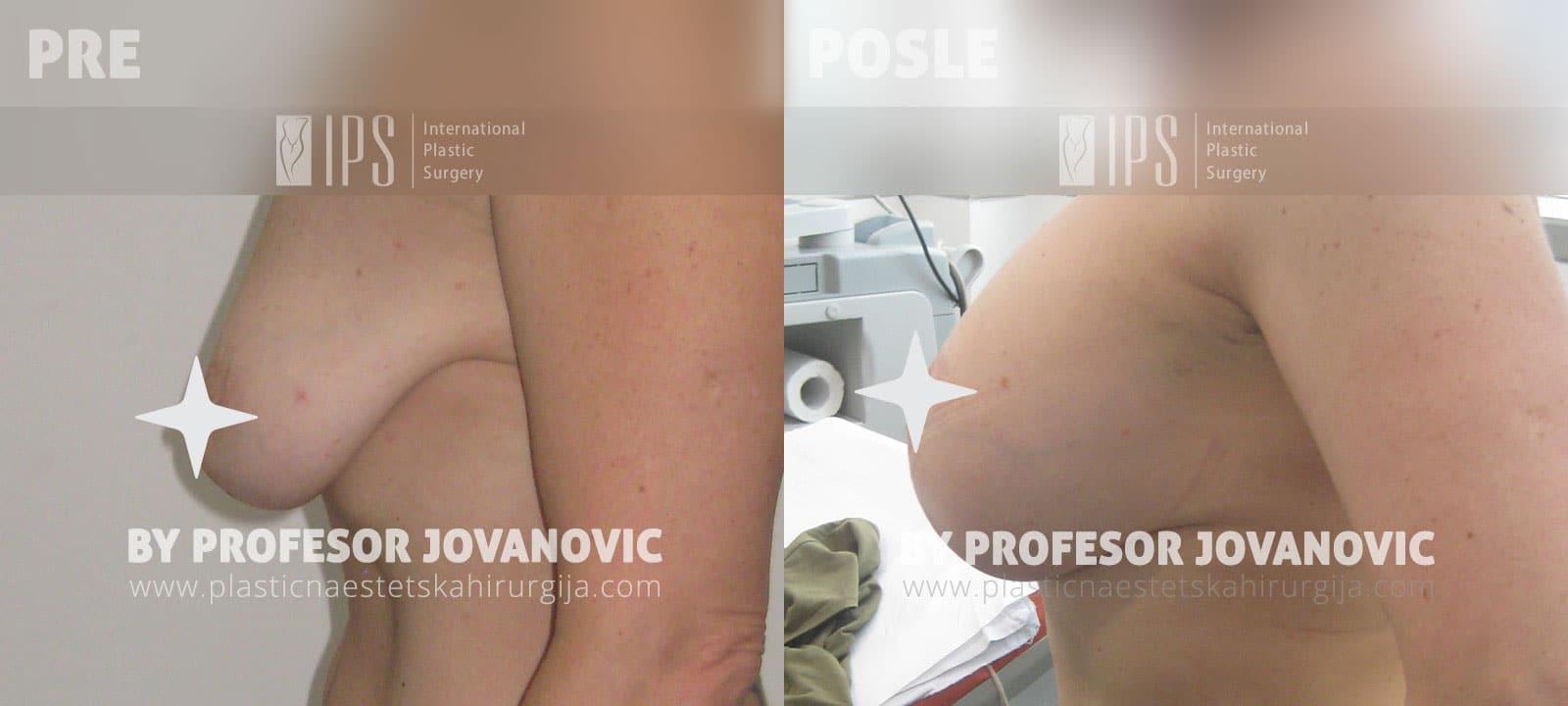Podizanje grudi sa ožiljkom i povećanje grudi - pre i posle, levi bok
