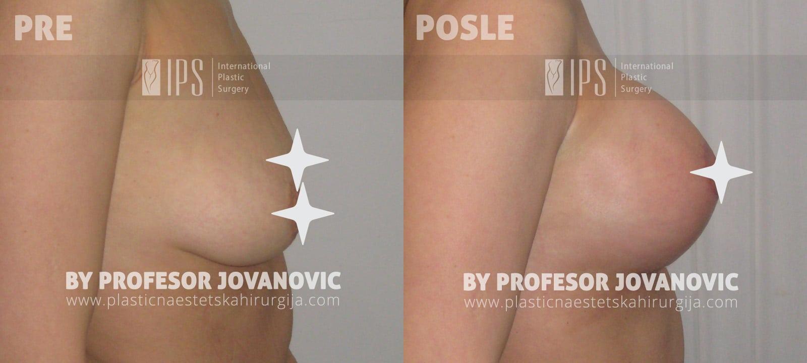 Podizanje grudi sa ožiljkom i povećanje grudi - pre i posle, desni bok
