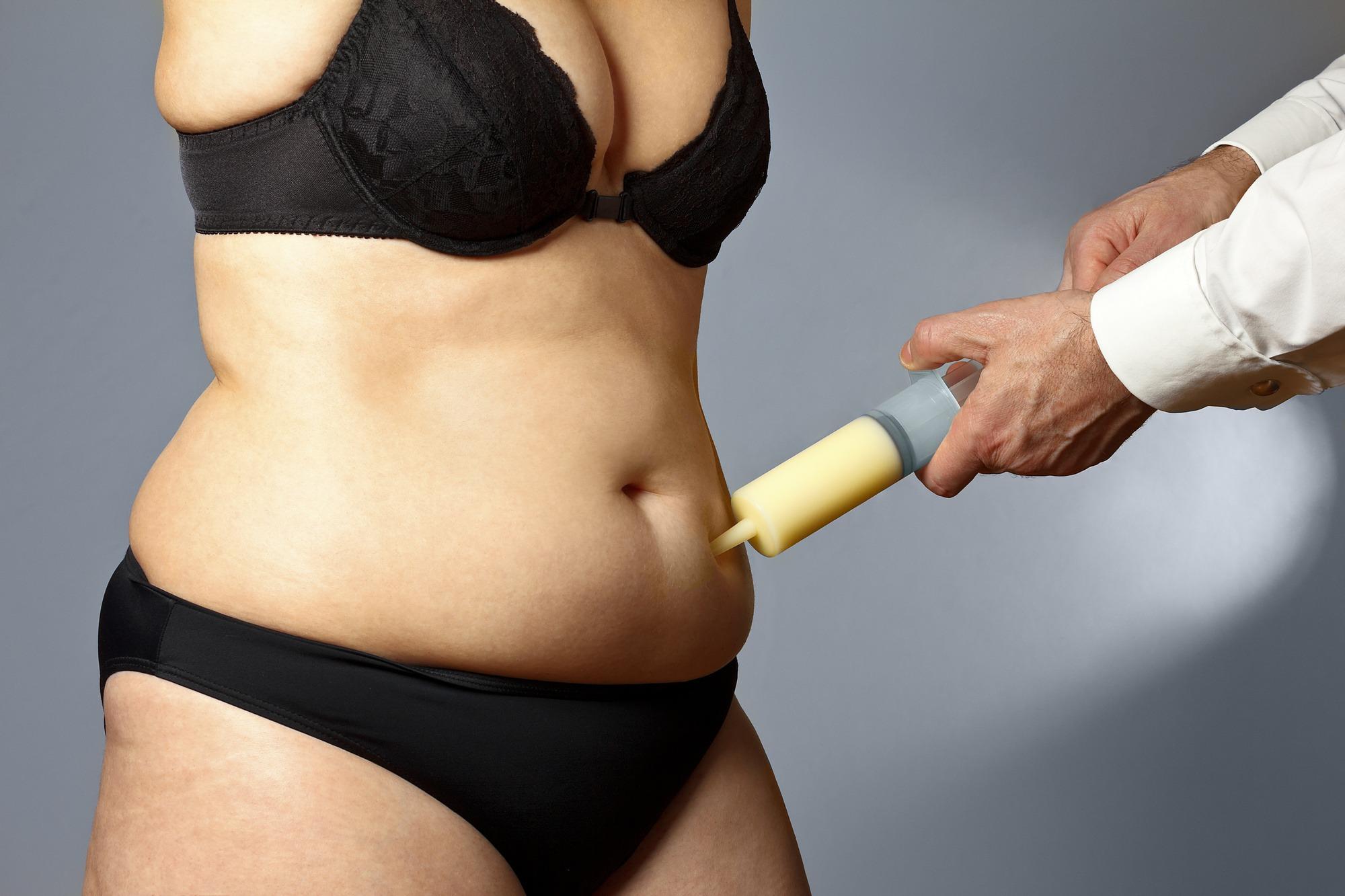 Liposukcija je isisavanje masnog tkiva